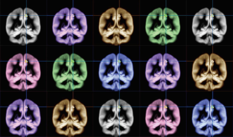 مسح دماغي لأشخاص ولدوا بيد واحدة يغير تماماً فهمنا للدماغ